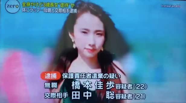 橋本佳歩容疑者は娘に熱湯をかけ放置した