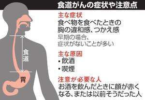 食道がん・症状