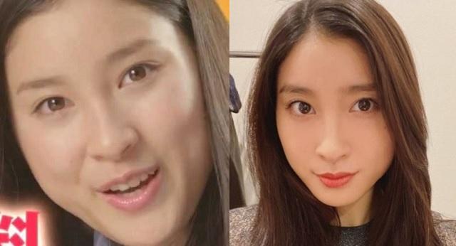 【2021】土屋太鳳の顔が変わった?